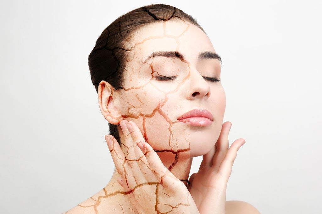 Что делать если шелушится кожа