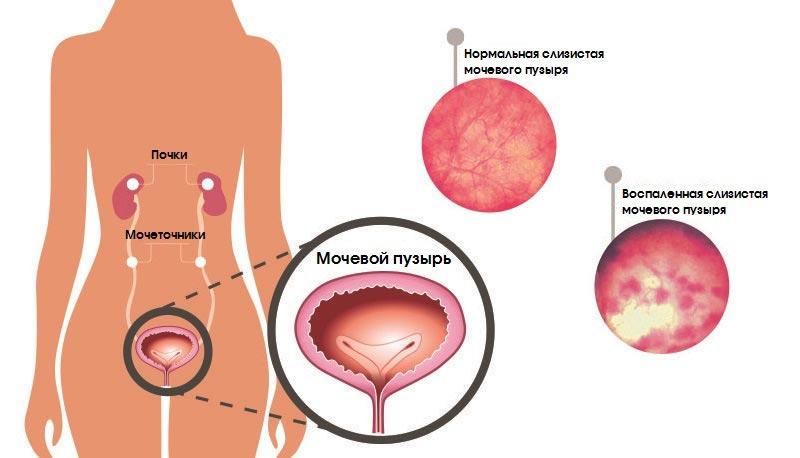 Воспаление мочевого пузыря у женщин