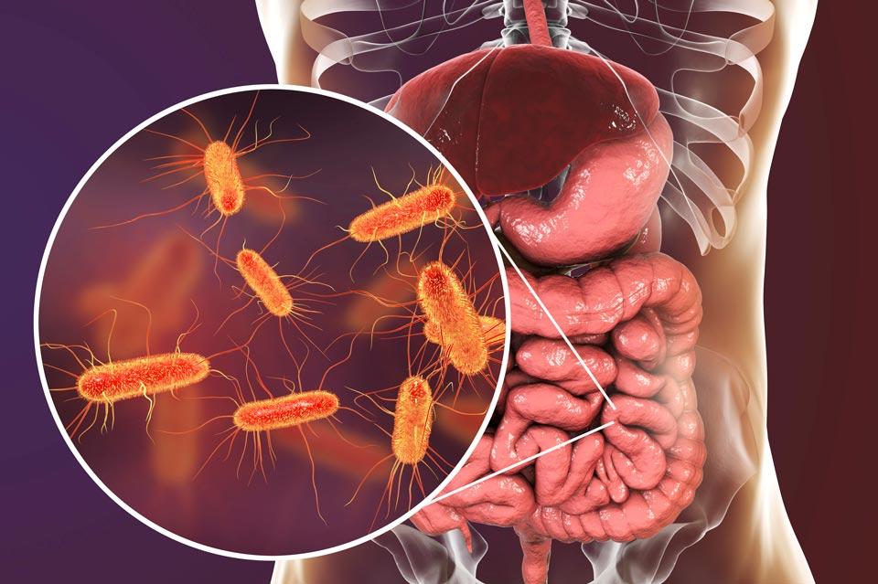 Дисбактериоз микрофлоры кишечника